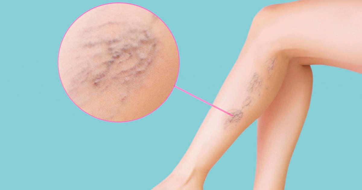 durere în varice la nivelul picioarelor